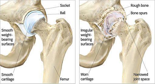 Hip Arthritis